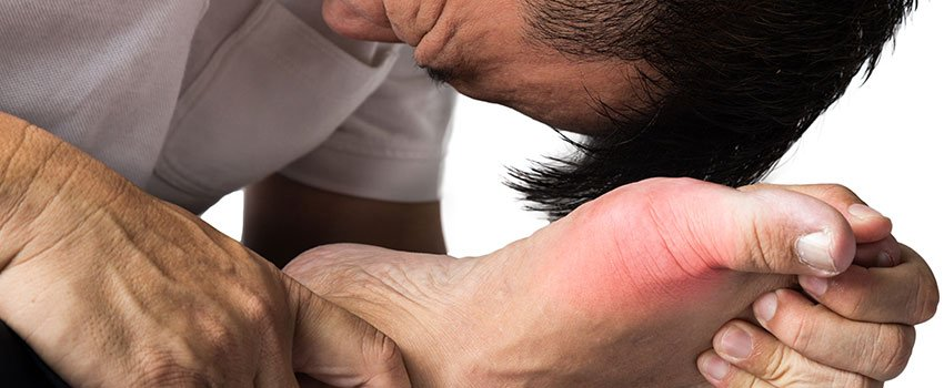 Ways to Treat Gout